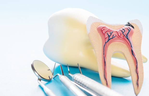 What Are Root Canals
