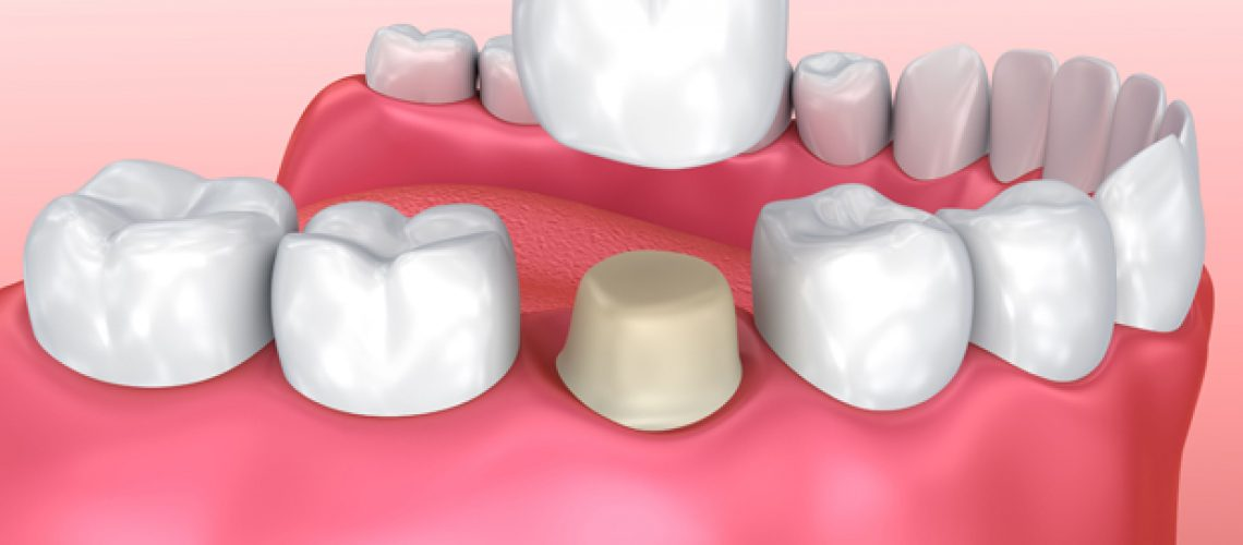 Why Would A Dental Crown Be Needed